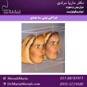 جراحی-بینی-سه-بعدی
