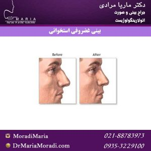 بینی-غضروفی-استخوانی
