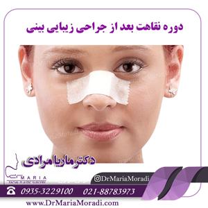 دوره نقاهت بعد از جراحی زیبایی بینی